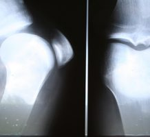 Knee replacement surgery vs. therapy