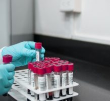 Blood test for Alzheimer's now available